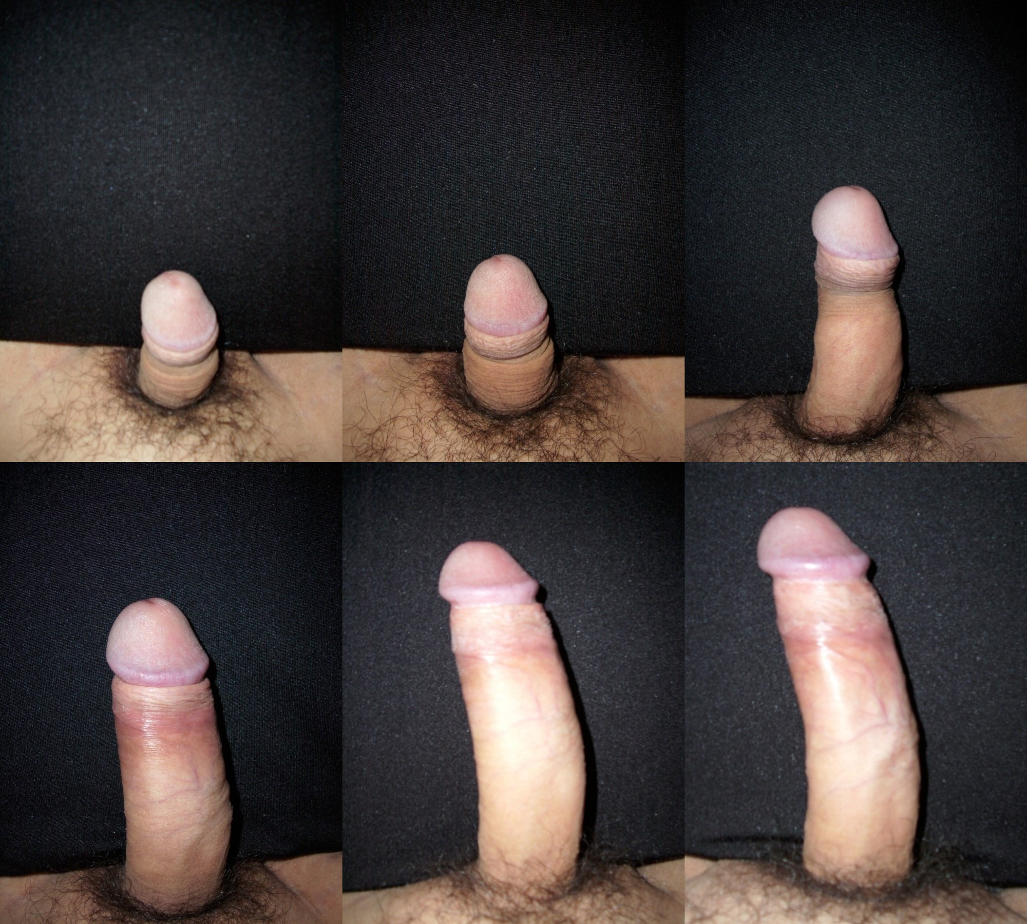 Growing uncut penis pictures