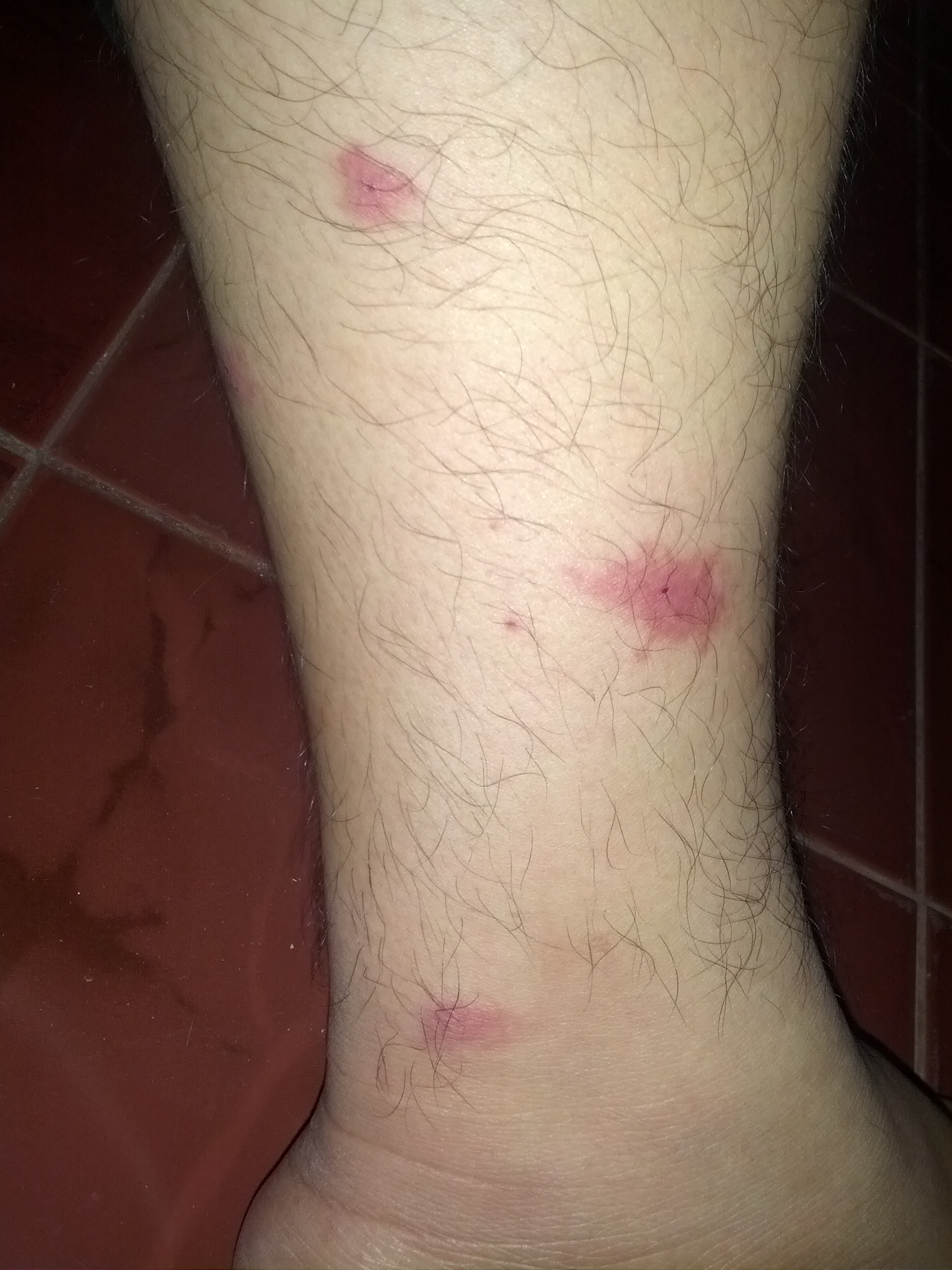 Insect bites on legs - photo#3