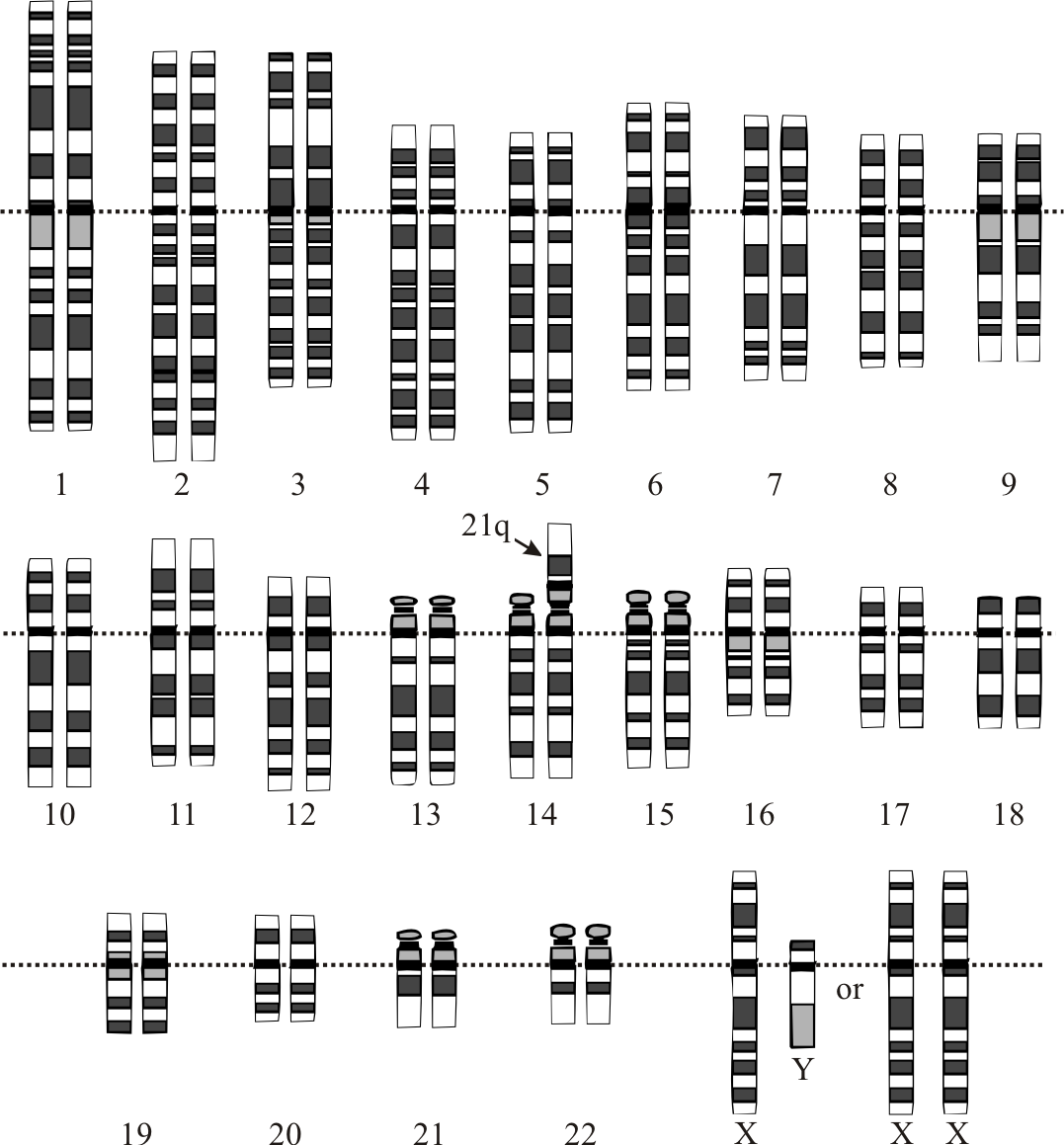 File:Robertsonian translocation rob(14;21).png - Wikimedia ... Robertsonian Translocation Karyotype