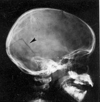 Síntomas penetrantes de fractura de cráneo