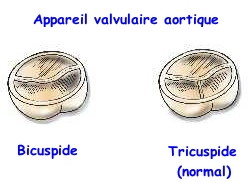 Description de l'image valves-aortiques.jpg.
