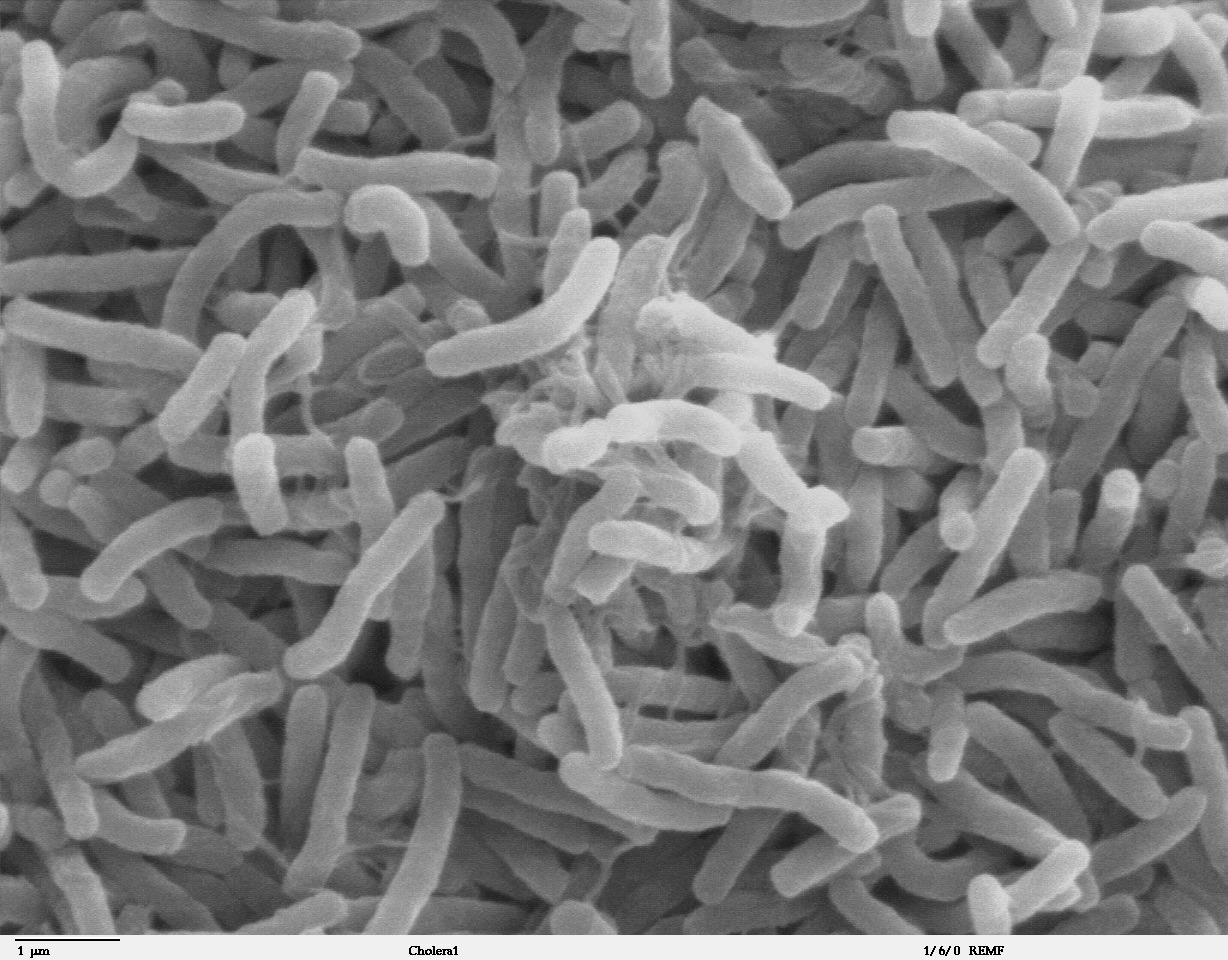 File:Cholera bacteria SEM.jpg - Wikipedia, the free encyclopedia