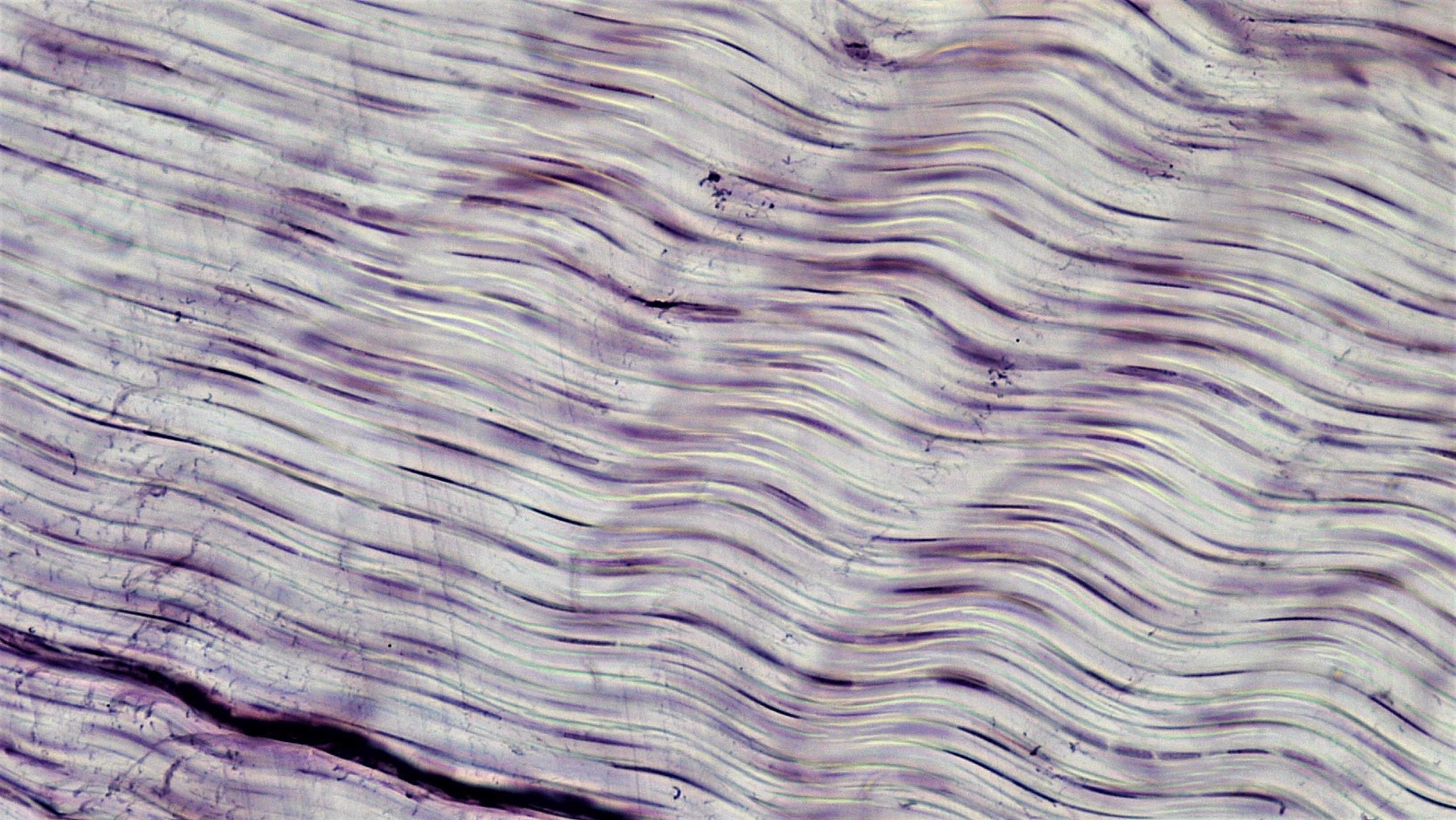 Fileconnective Tissue White Fibrous Connective 27986734918g