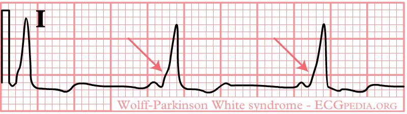 De-Rhythm WPW (CardioNetworks ECGpedia)