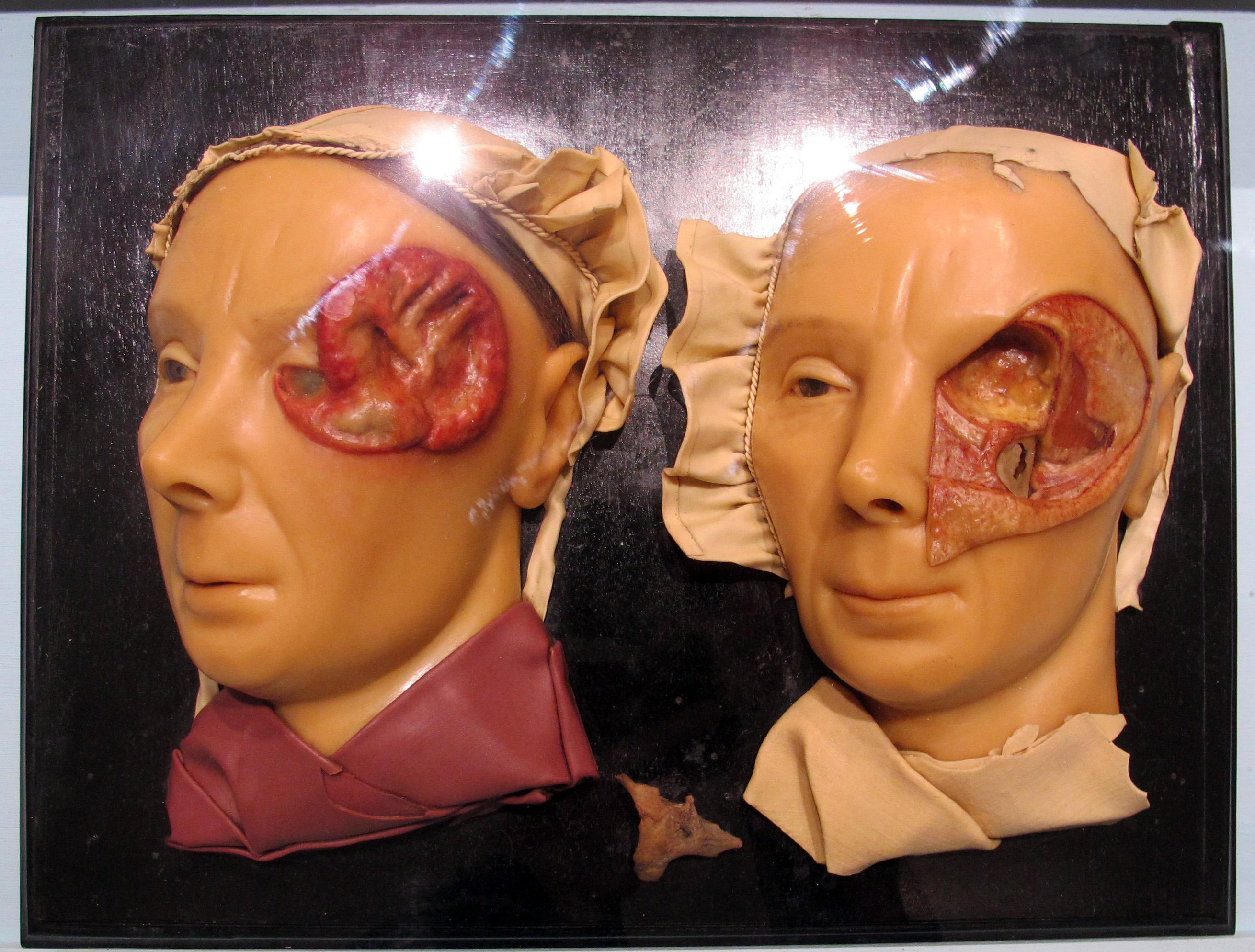 Dorable El Museo De Anatomía Patológica Friso - Imágenes de Anatomía ...