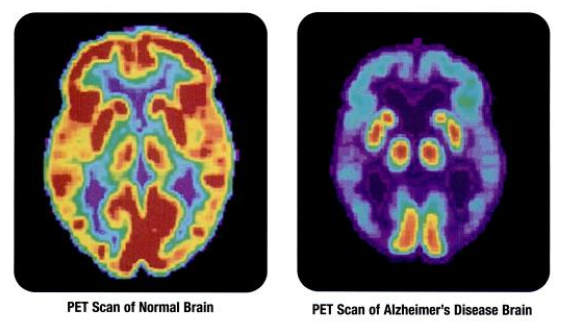 Image result for pet scan of alzheimer's brain vs normal brain