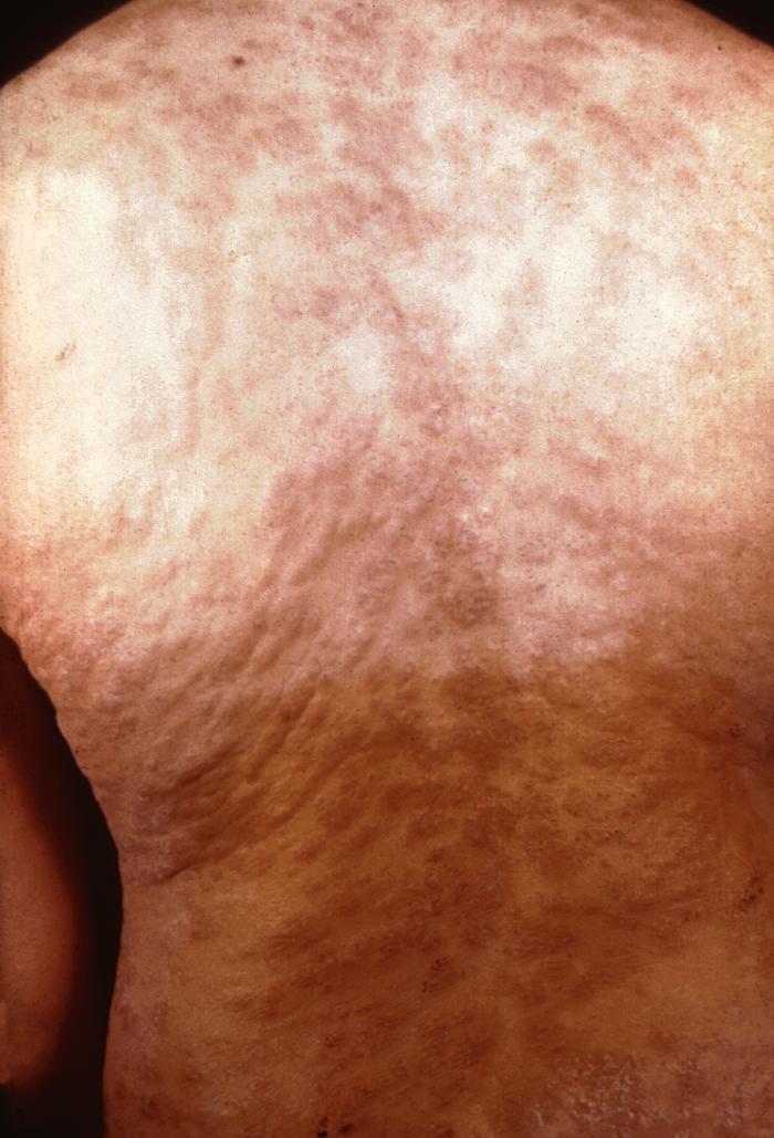 File:Secondary syphilitic rash Treponema pallidum 6756 lores.jpg ...