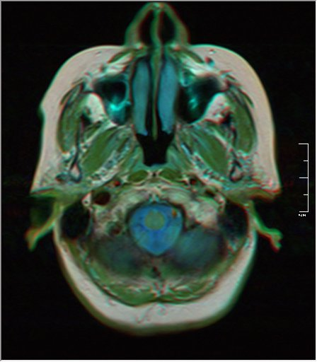 Brain MRI 0153 19.jpg