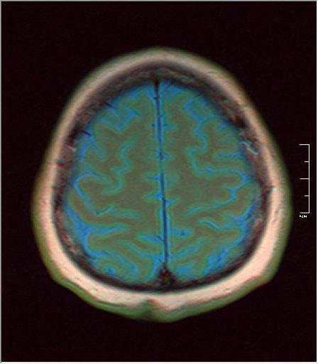 Brain MRI 0230 03.jpg