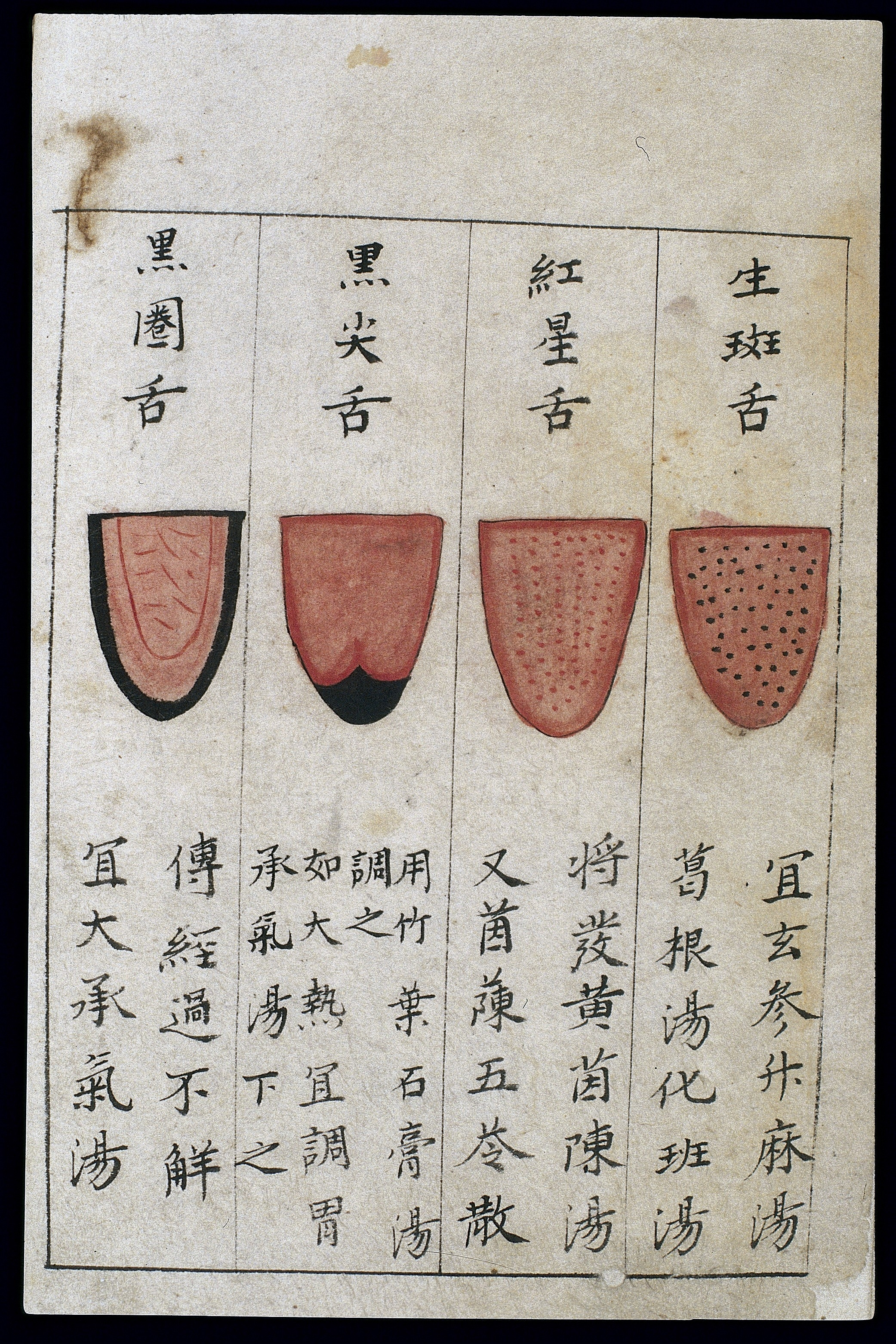 Body Type Chart: C14 Chinese tongue diagnosis chart Wellcome L0039595.jpg ,Chart