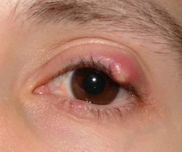 Natural Eyelash Growth Product Reviews