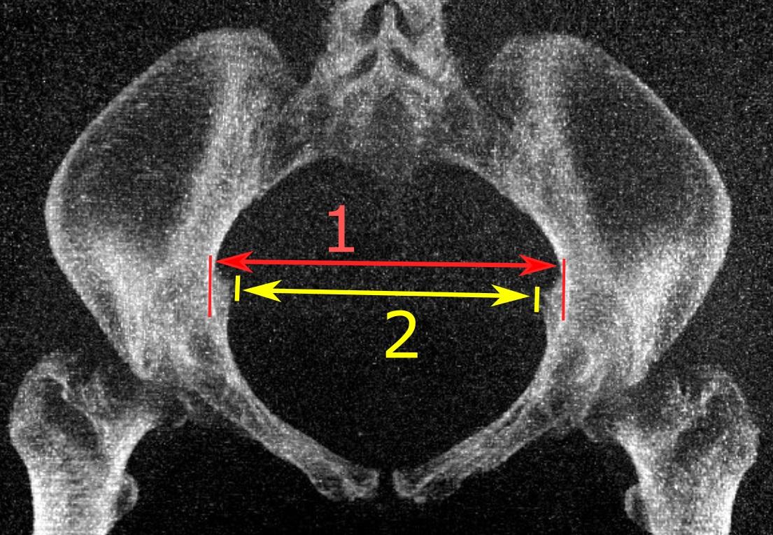 File Low Dose Ct Of Transverse Diameter Of Pelvic Inlet