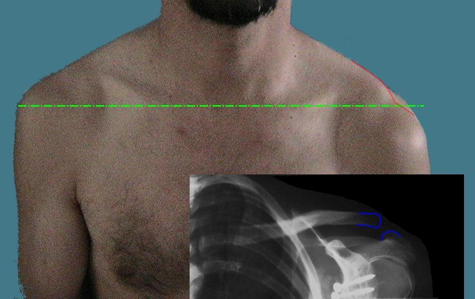 Schultereckgelenksverrenkung – Wikipedia