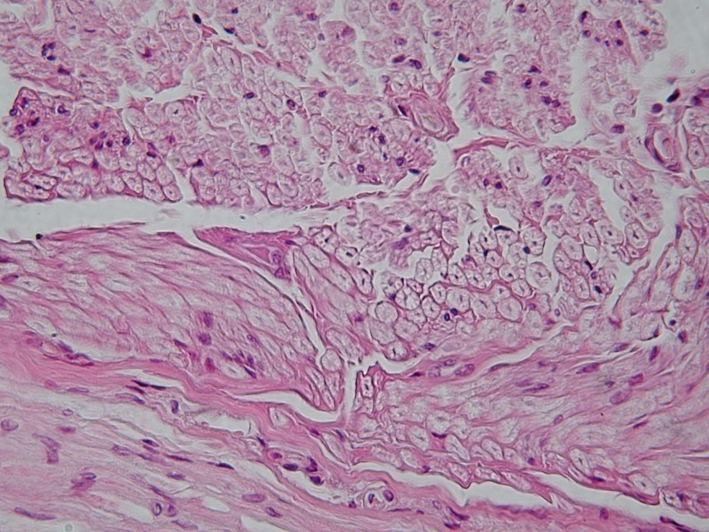 Nervous tissue - Wikipedia
