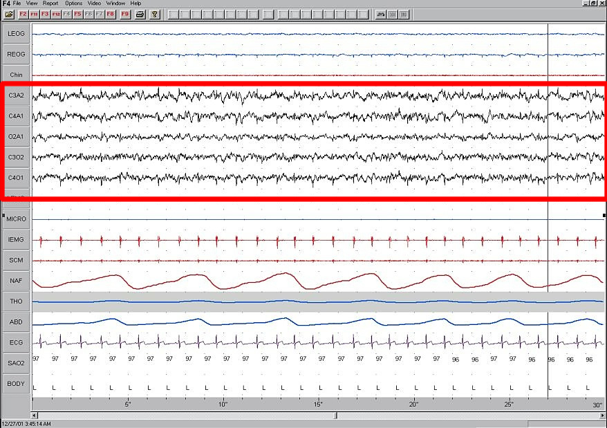File:Sleep EEG Stage 1 jpg - Wikimedia Commons