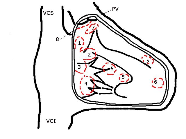 Ventricular Septal Defect Treatment History File Ventricular Septal Defect