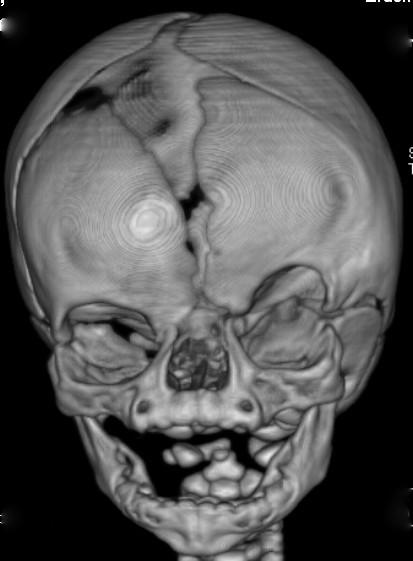 File:CFND CT-scan.jpg