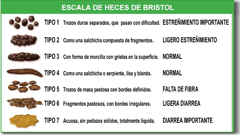 bristo chart