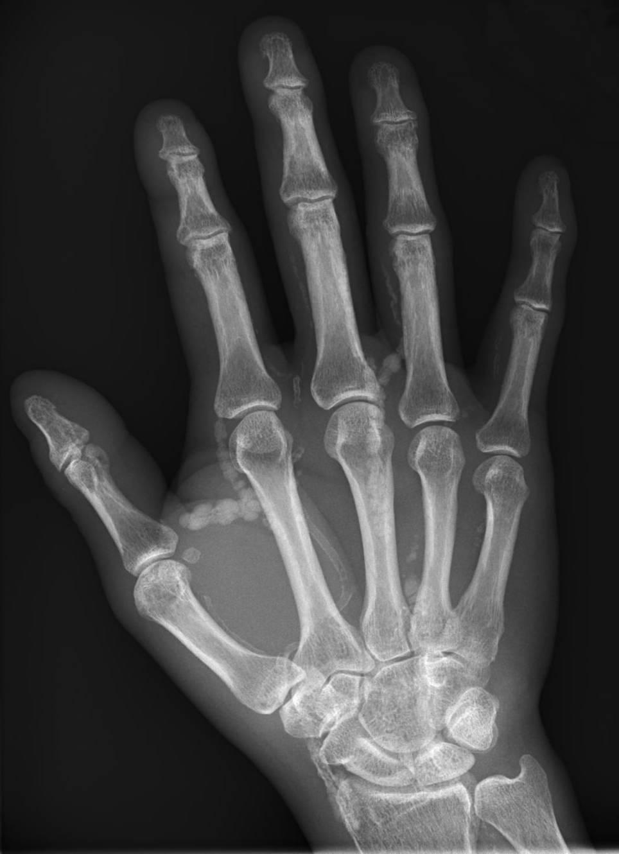 Image Gallery Radiograph