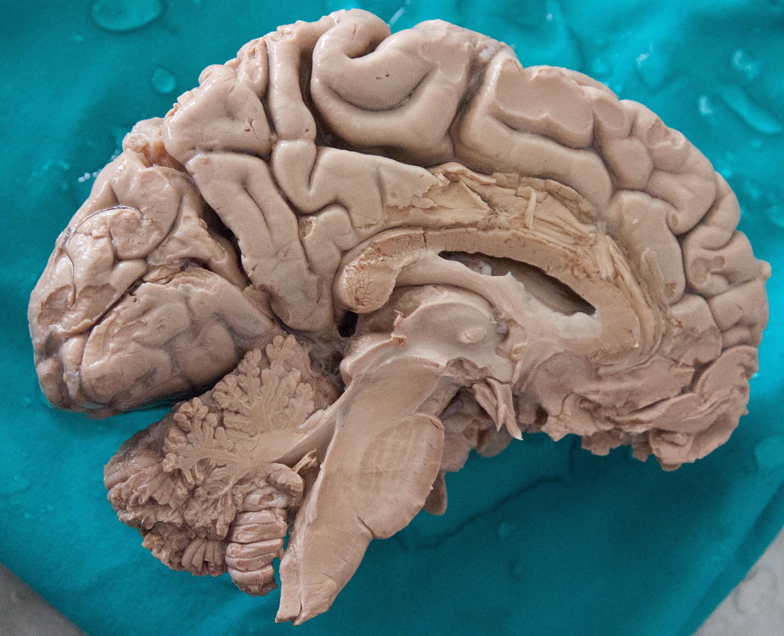File:Human Brain Dissected.jpg - Wikimedia Commons