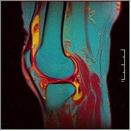 Knee MRI 0025 13 pdfs t1 t2 59f.jpg