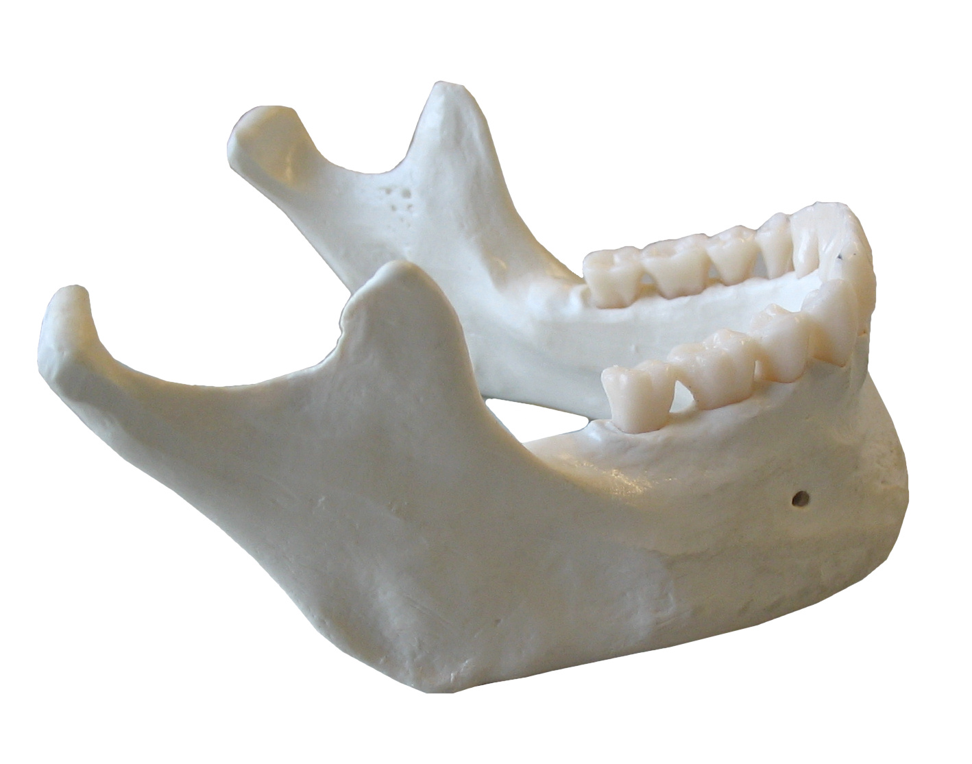 Mandible - Wikipedia