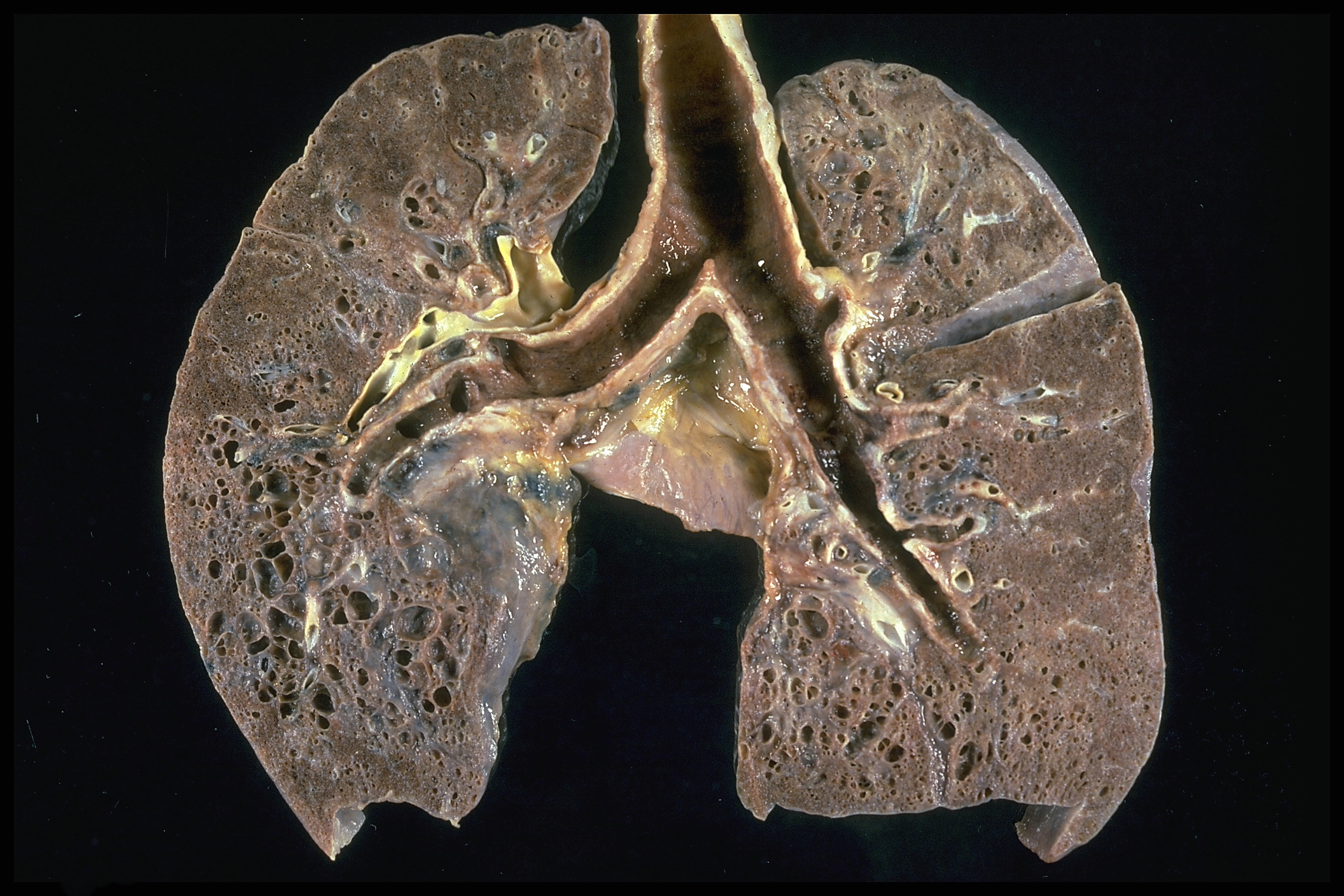 Does Natural Cancer Treatment Work