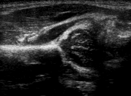 http://upload.wikimedia.org/wikipedia/commons/9/9f/Ultrasound_Scan_ND_0114142455_1429140_crop.png