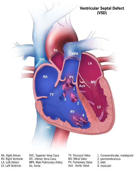 ventricular septal defect - wikipedia, Human Body