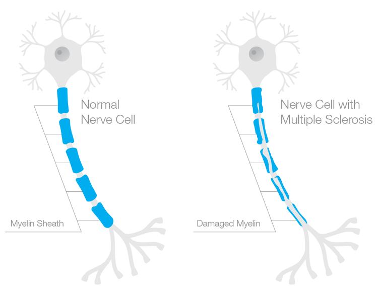 A gauche : Neurone normal (gaine de myéline complète) | A droite : Neurone avec sclérose en plaques (gaine de myéline endommagée)