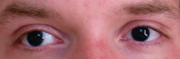 Eyes of a patient with aniridia