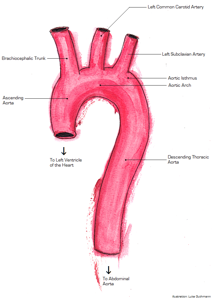 Familial Aortic Dissection Wikipedia