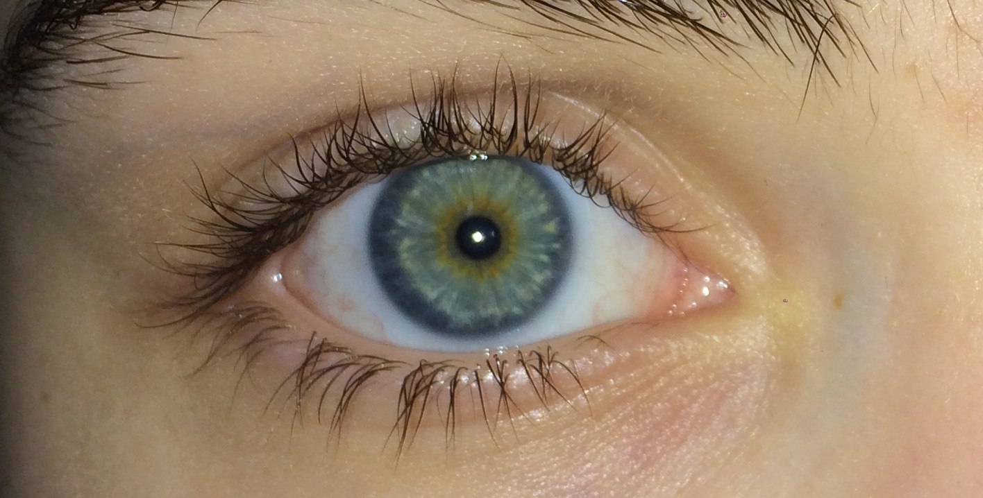 Brown Ring In Blue Eyes