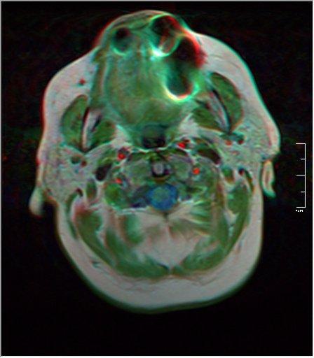 black holes on brain mri - photo #45