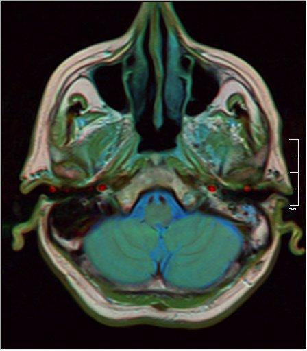 Brain MRI 17 0045 t1 pd t2.jpg
