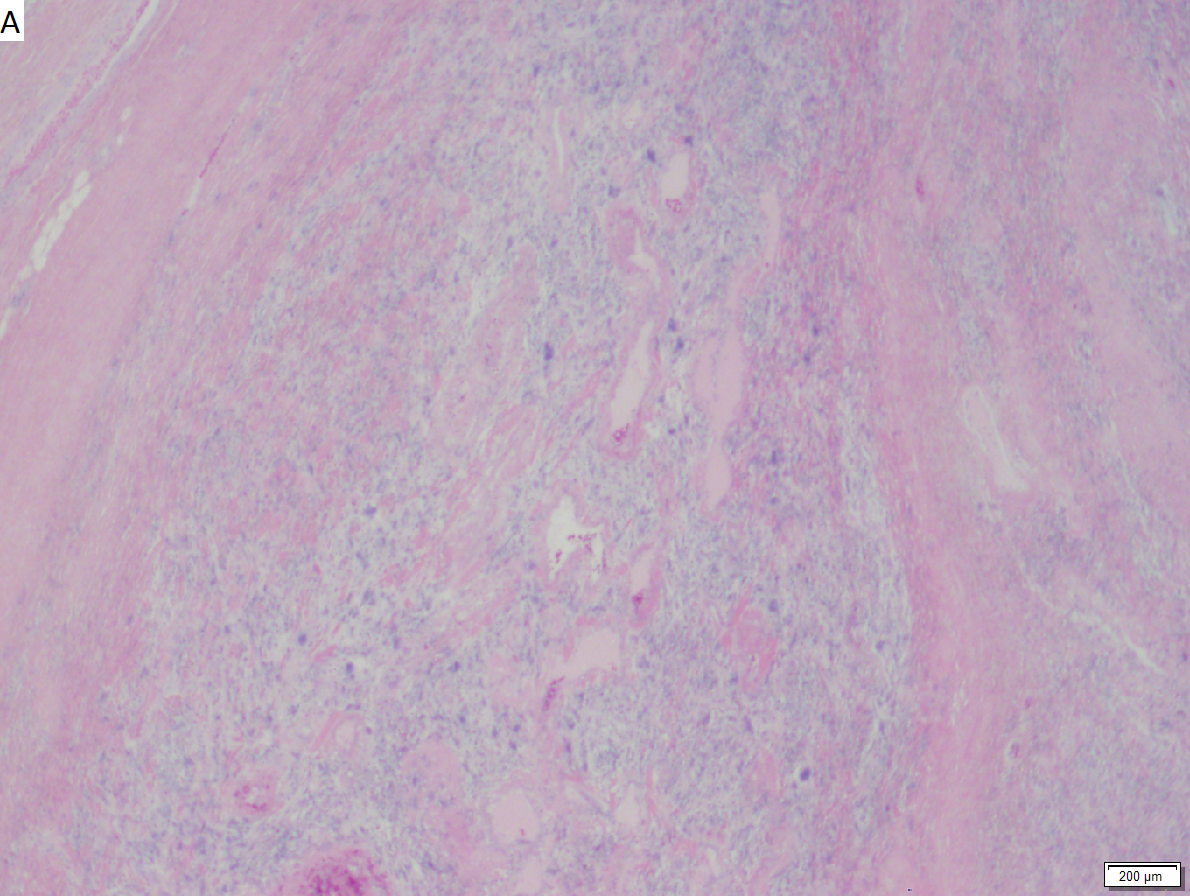 Pleomorphic hyalinizing angioectatic tumor of soft parts (subcutis).