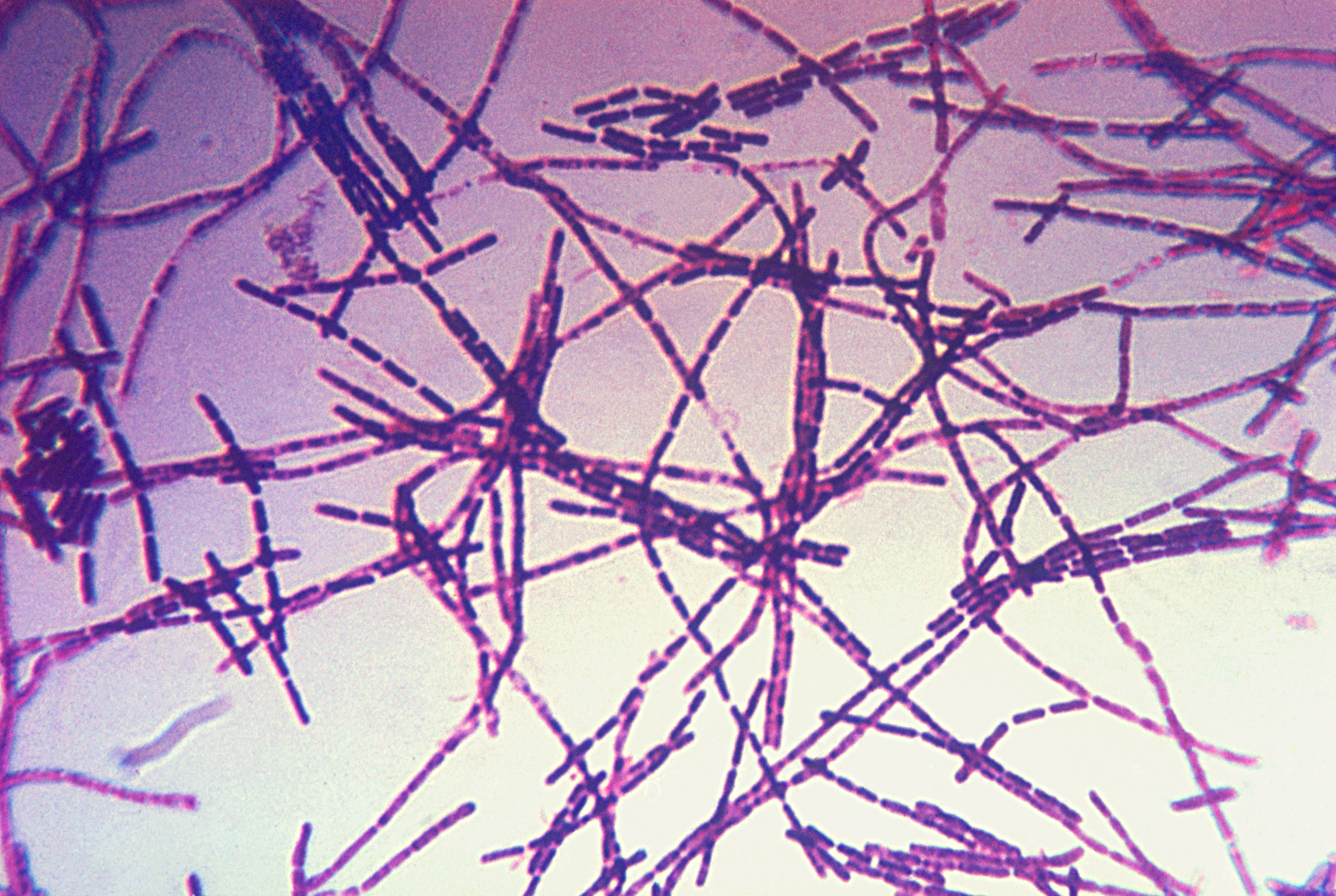 Description bacillus anthracis gram