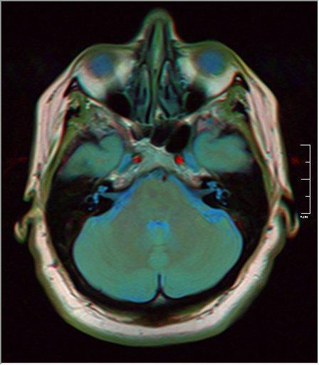 Brain MRI 0145 15.jpg