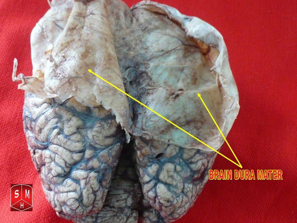 File:Brain dura mater 2.jpg - Wikipedia
