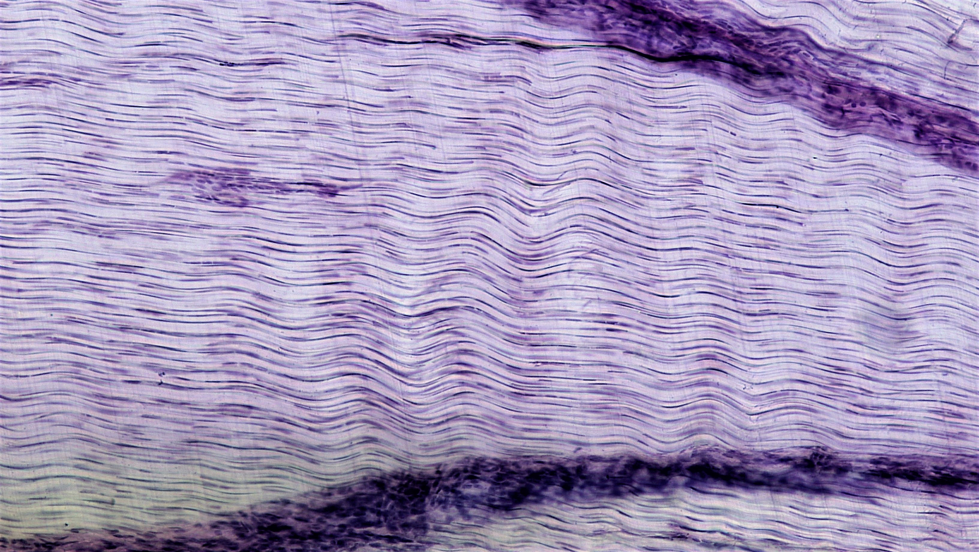 Fileconnective Tissue White Fibrous Connective 26987100397g