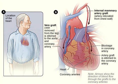 Cardiac Syndrome X Natural Treatment