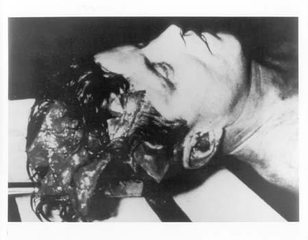 File Kennedy Autopsy Head Jpg