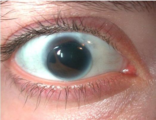Cat Eye Pupil Disorders