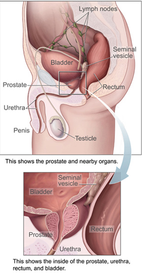 Prostate and bladder, sagittal section.