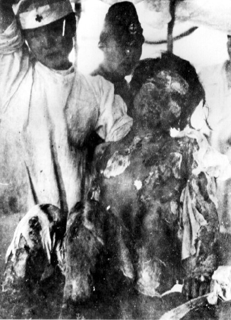 atomic bomb victims. Archivo:Victim of Atomic Bomb