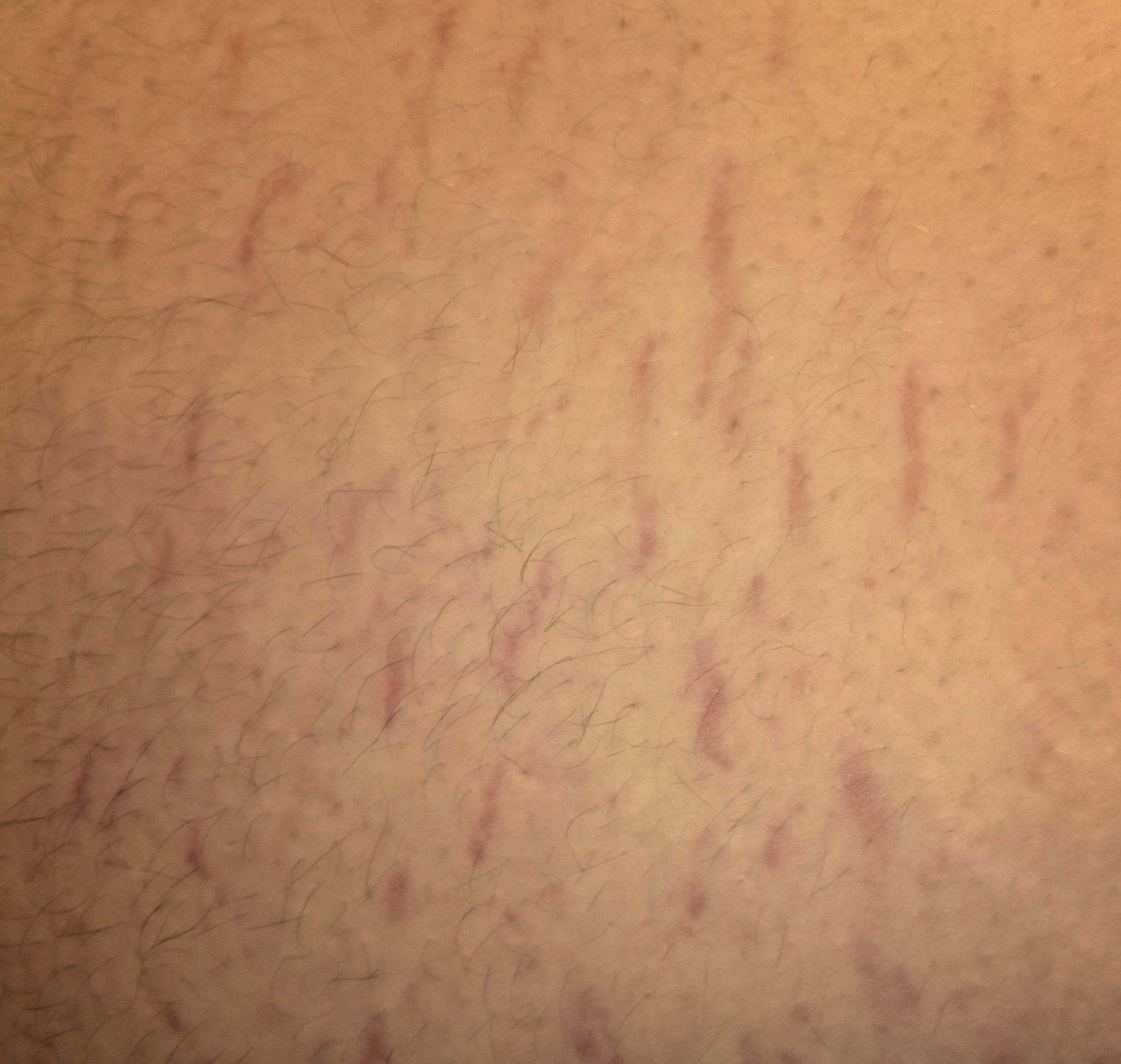 Die Pigmentflecke in der Leiste auf den Beinen