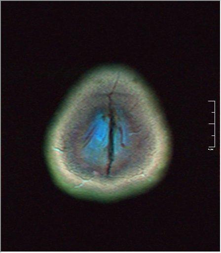 Brain MRI 0081 00.jpg
