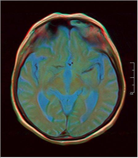 Brain MRI 0198 11.jpg