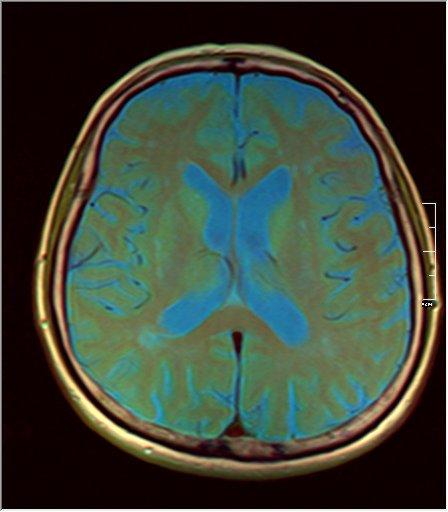 Brain MRI 08 0045 t1 pd t2.jpg