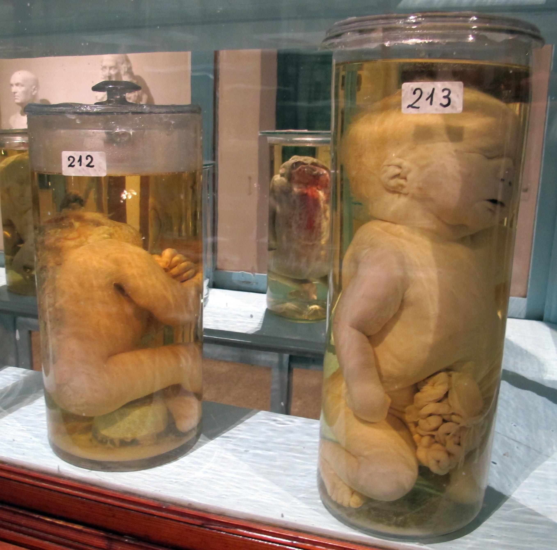 File:Istituto di anatomia patologica, museo, campioni 07 feti ...